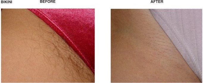 Brazilian laser hair removal video