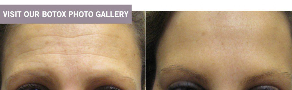 Botox with Dr. Minuk's Laser Centre and SkinClinic