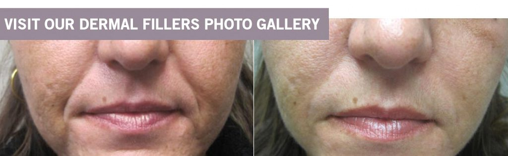 Dermal Fillers at Dr. Minuk's SkinClinic and Laser Centre