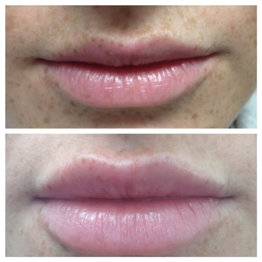 Lip Enhancements - before-after1