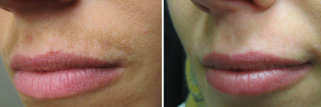 Clear+Brilliant Permea Laser* (* Before and After results may vary )