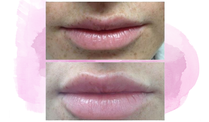 Lip Enhancements with Dr. Minuk
