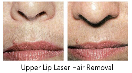 Before & After Pictures of Laser Hair Removal in Winnipeg ...