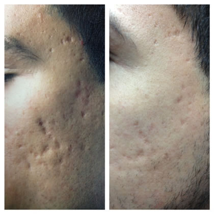 Before-After one acne scar treatment