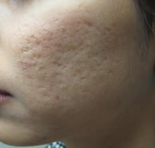 CO2 fractional Acne before