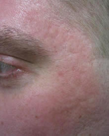 CO2 fractional Acne after