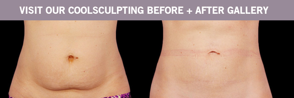 CoolSculpting BEFORE AND AFTERS Winnipeg