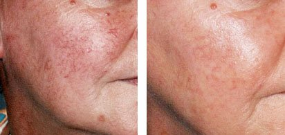 Cheek spider veins and Rosacea (1 laser treatment)