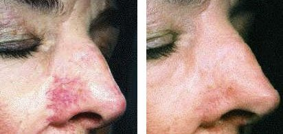 Lazer treatment for facial veins