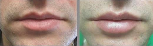 Lip Enhancements - before-after men