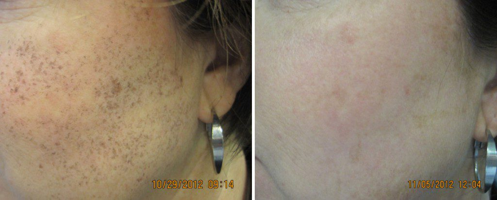 Brown Spots, Pigmentation & Melasma treatment in Winnipeg