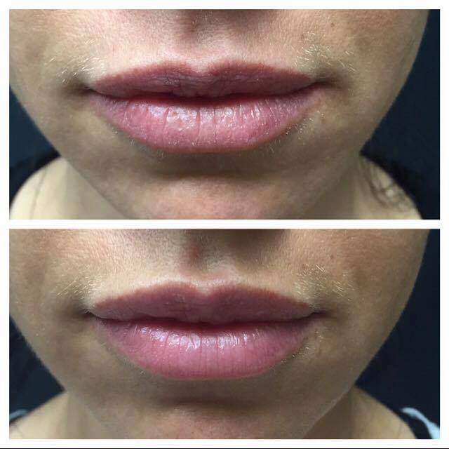 5 Quick Facts On Lip Enhancement With Juvederm Volbella
