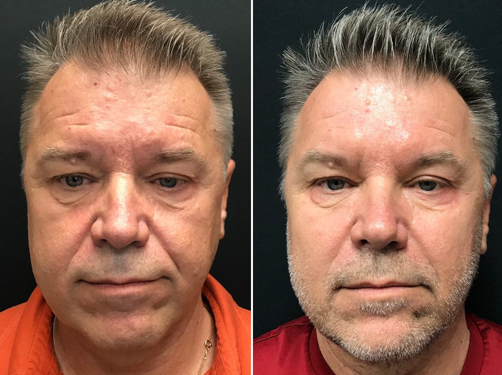 Fillers for Men in Winnipeg, Dr Minuk's SkinClinic & Laser Centre Before and Afters