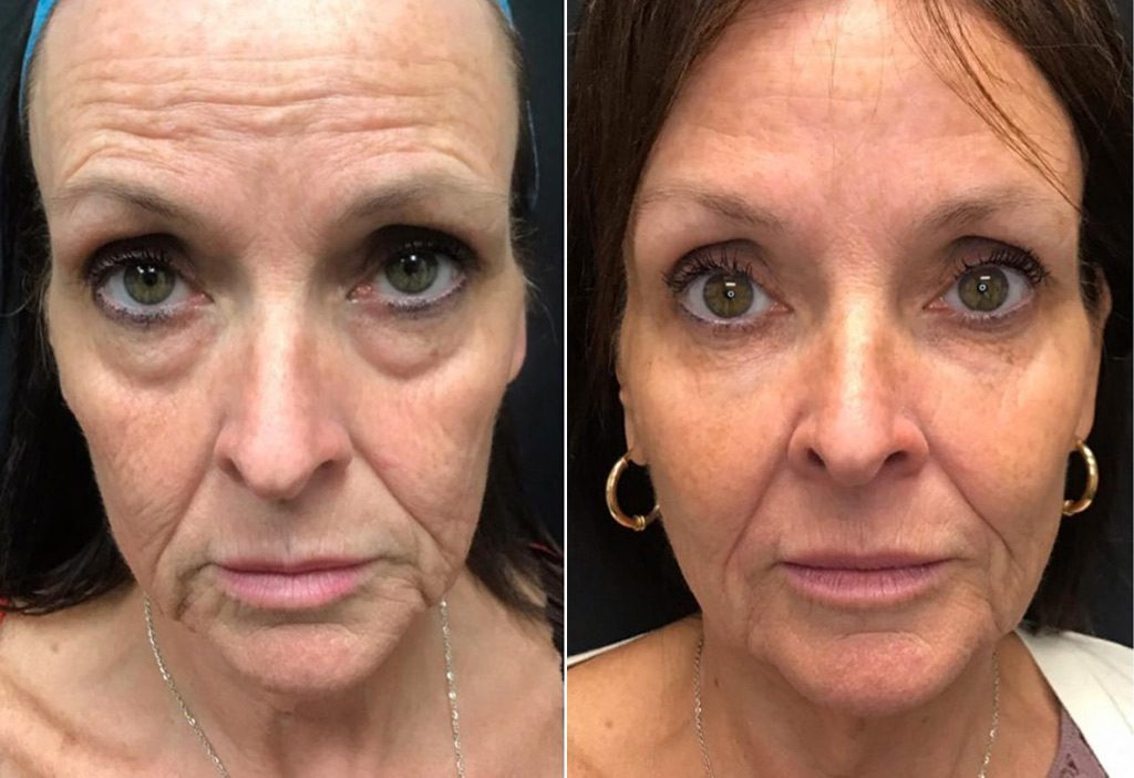Dermal Fillers Winnipeg Before and After