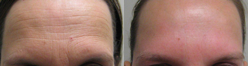 Botox for forehead lines in Winnipeg at Dr. Minuk's SkinClinic & Laser Centre