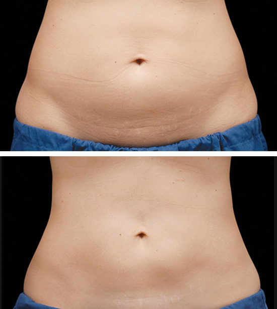 Coolsculpting before and after in Winnipeg, Manitoba