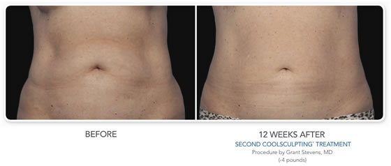 CoolSculpting Stomach Before and After