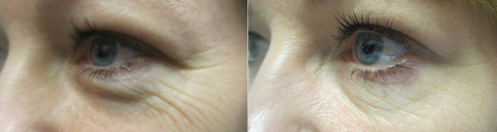 Botox for Crow's Feet in Winnipeg at Dr. Minuk's SkinClinic & Laser Centre