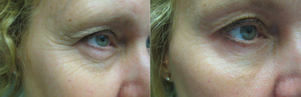 Botox for Crow's Feet in Winnipeg at Dr. Minuk's Laser Centre and SkinClinic