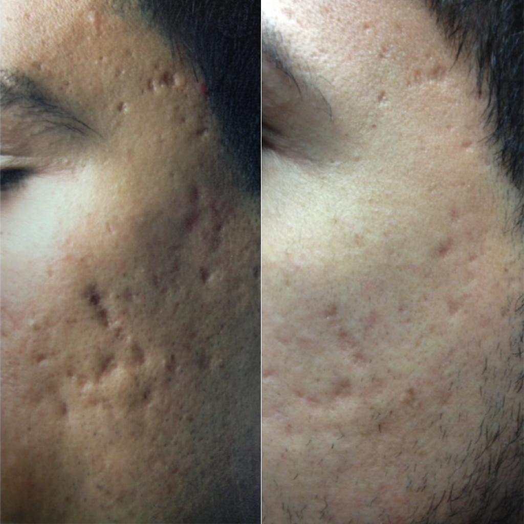 Fraxel Laser, Acne Scar Removal at Dr. Minuk`s SkinClinic and Laser Centre