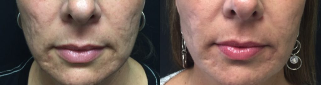 Fractional CO2 Laser, Acne Scar Removal at Dr. Minuk`s SkinClinic and Laser Centre
