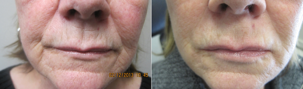 Smile lines, marionette lines, lipstick lines, facial thinning and enhancement (Juvederm Voluma, Volbella & UltaPlus)