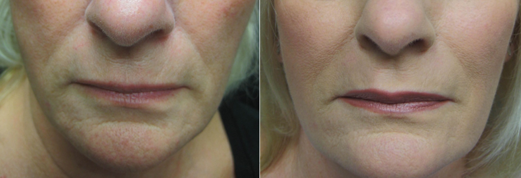 Fillers at Dr. Minuk SkinClinic & Laser Centre