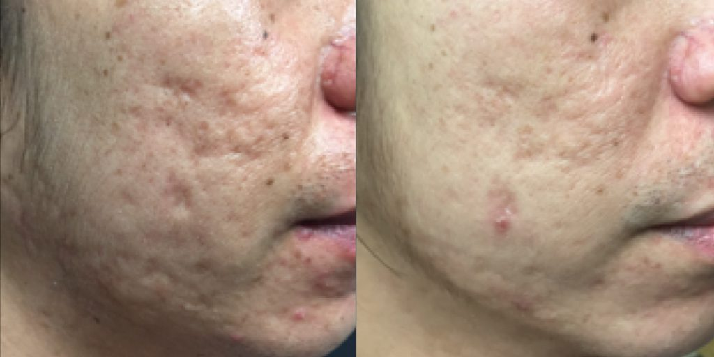 Infini RF, Acne Scar Removal at Dr. Minuk`s SkinClinic and Laser Centre