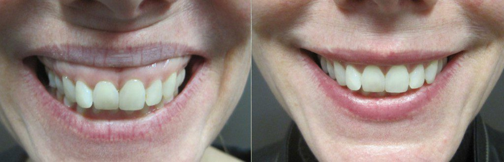Botox for Gummy Smiles in Winnipeg at Dr. Minuk's SkinClinic & Laser Centre