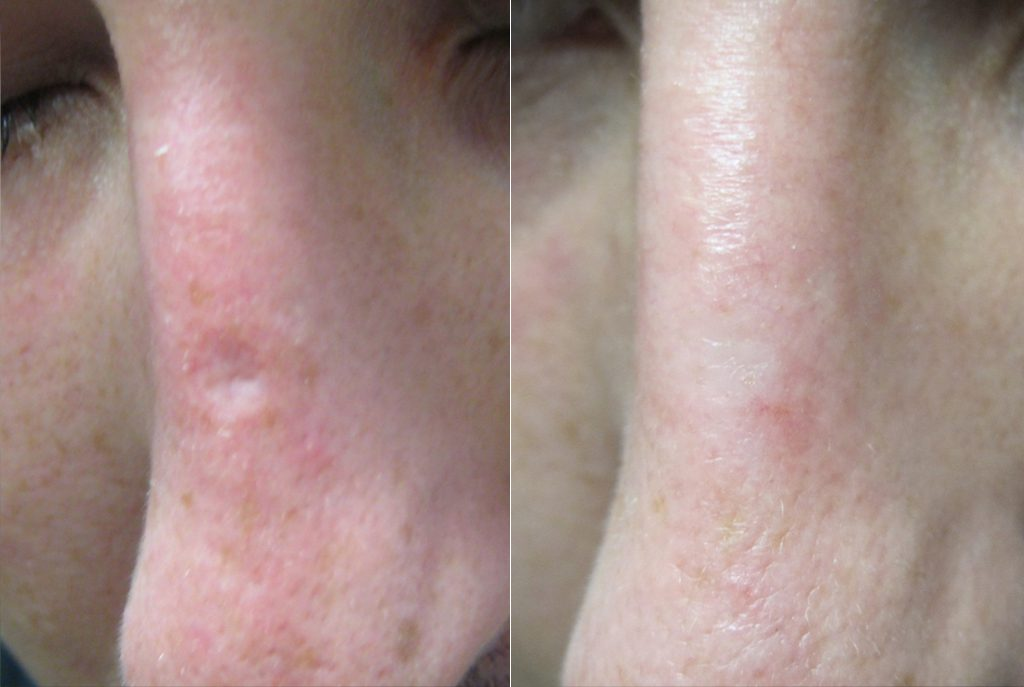 Chicken Pox Scar Removal at Dr. Minuk`s SkinClinic and Laser Centre