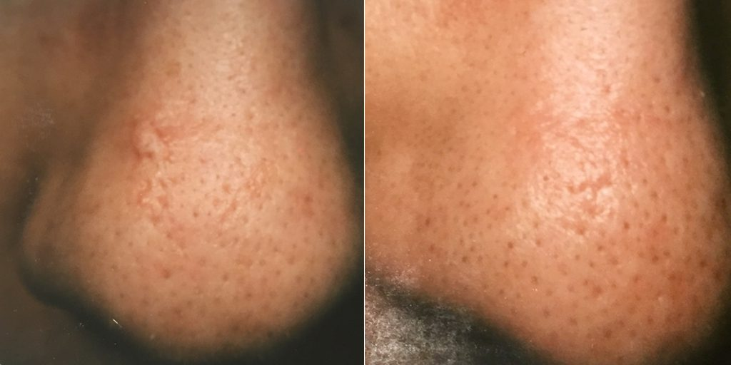 Nose Scar Removal at Dr. Minuk`s SkinClinic and Laser Centre