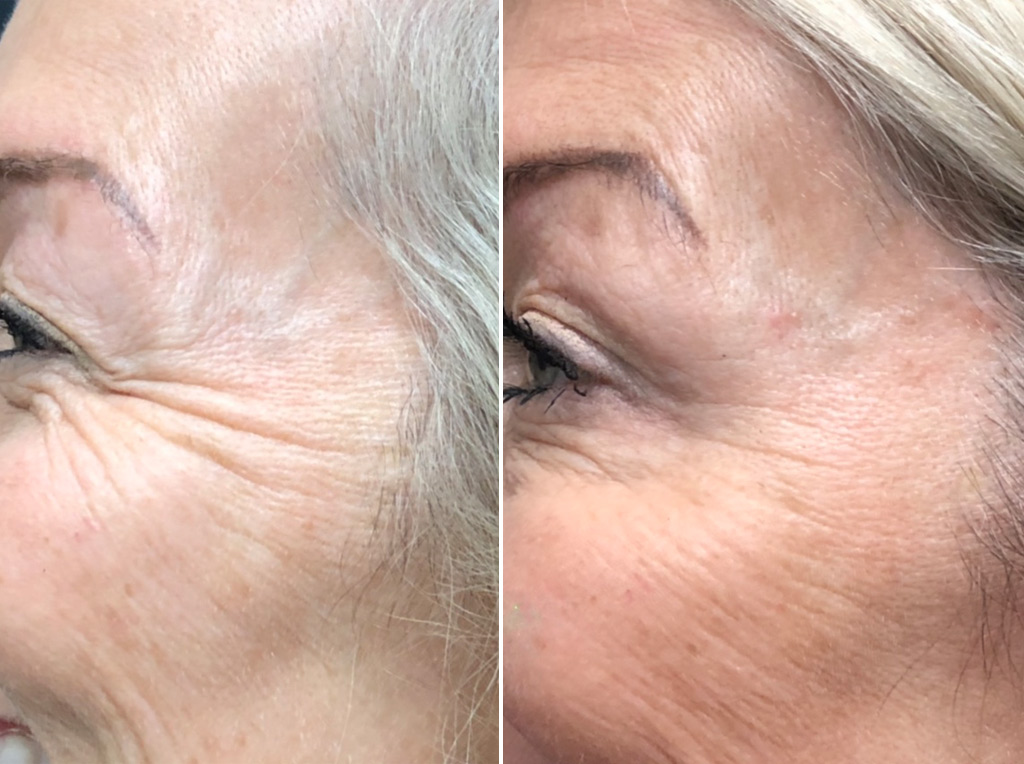 BotoxCosmetic & Filler to crows feet and upper cheeks