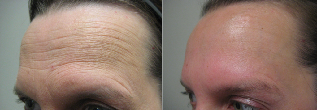 Botox for forehead lines in Winnipeg at Dr. Minuk's Laser Centre and SkinClinic