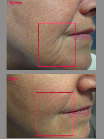 Sculptra Before and After Winnipeg