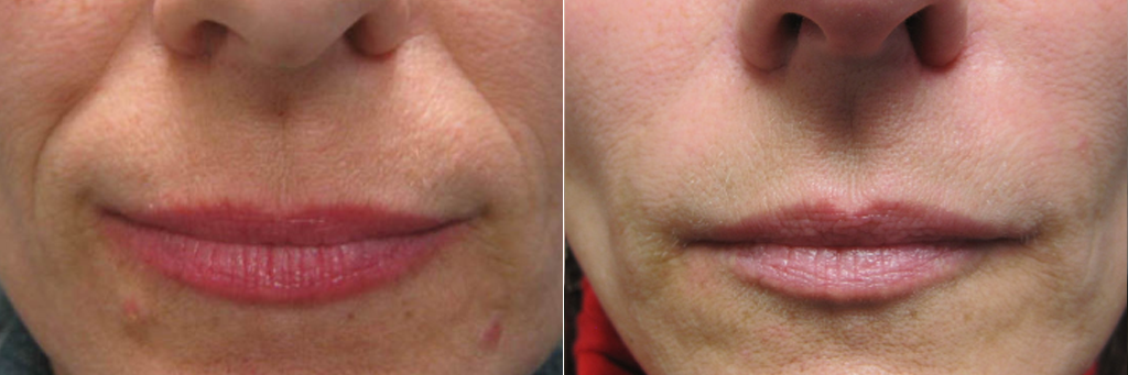 Fillers for smile lines at Dr. Minuk SkinClinic & Laser Centre