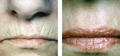Lip lines vanish with CO2 laser