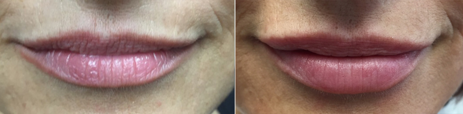 Lip Enhancements by Dr. Minuk