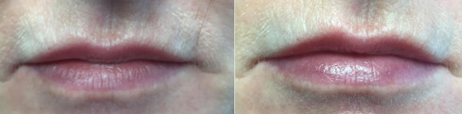 Lip Enhancements by Dr. Minuk in Winnipeg