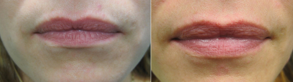 Lip Fillers at Dr. Minuk's SkinClinic and Laser Centre