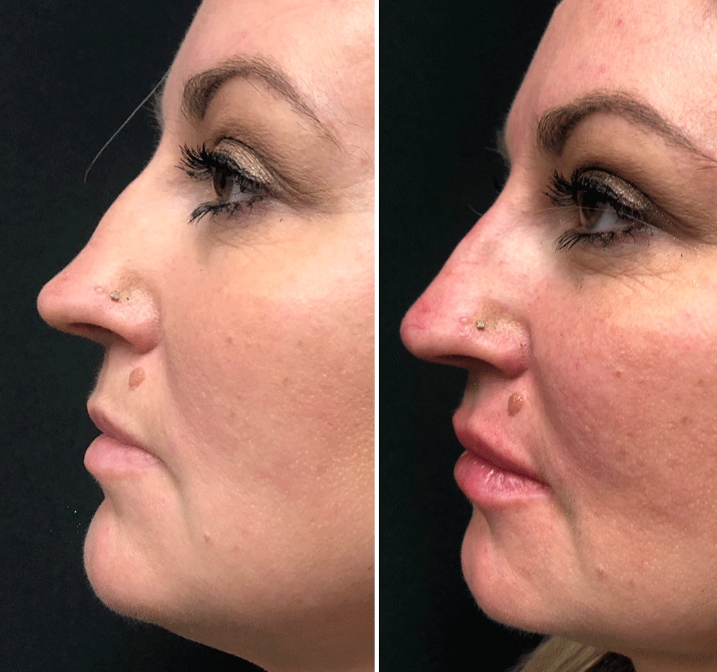 Non-surgical Rhinoplasty Before And After Winnipeg