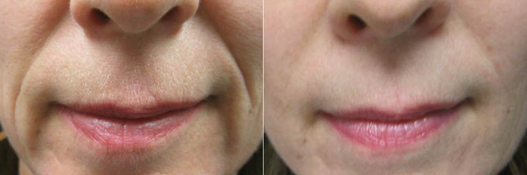 Smile lines (Juvederm Voluma) at Dr. Minuk's SkinClinic and Laser Centre