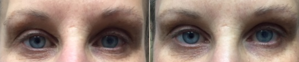 Fillers for tear troughs at Dr. Minuk SkinClinic & Laser Centre