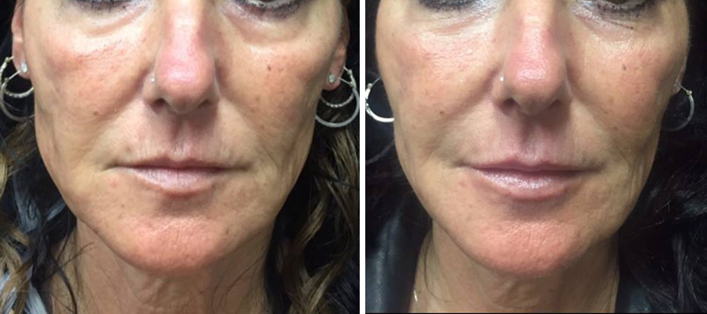 Amazing filler results at Dr. Minuk SkinClinic & Laser Centre in Winnipeg