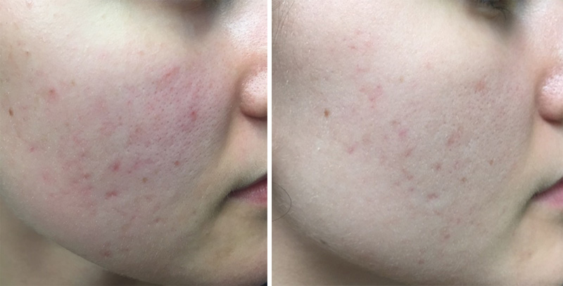 Microneedling MicroPen at Dr. Minuk SkinClinic & Laser Centre, Winnipeg