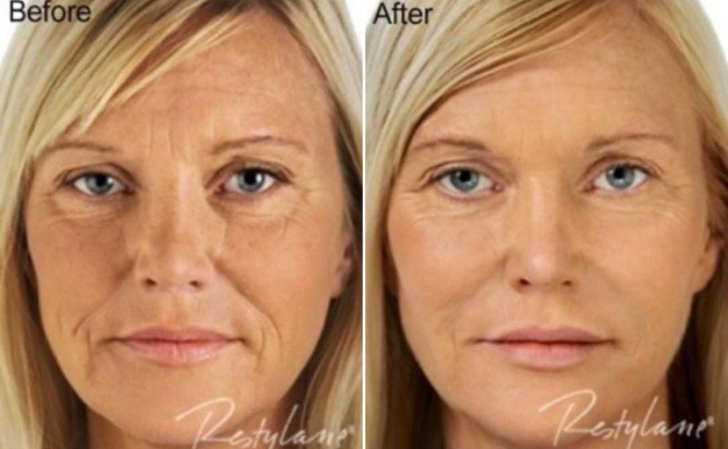 Restylane Vital Light Under Eyes Restylane Filler