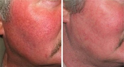 Facial redness treatment for men at Dr. Minuk's SkinClinic & Laser Centre