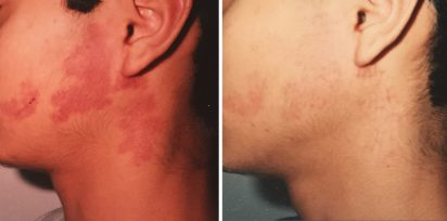 port stain treatment by Dr. Minuk's SkinClinic & Laser Centre