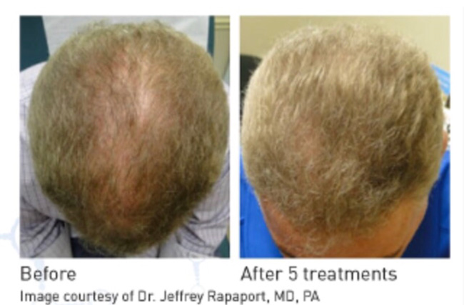 Dermatologist Dr. Minuk of Winnipeg, a leader in non-surgical hair loss solutions offers the latest hair growth treatment – PRP injections.
