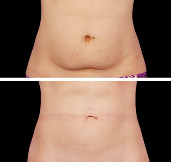 CoolSculpting Results Winnipeg