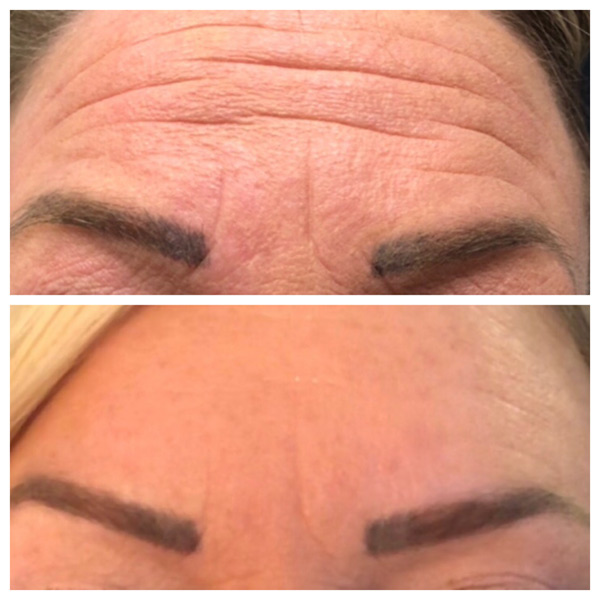 Forehead Botox Before and After Winnipeg